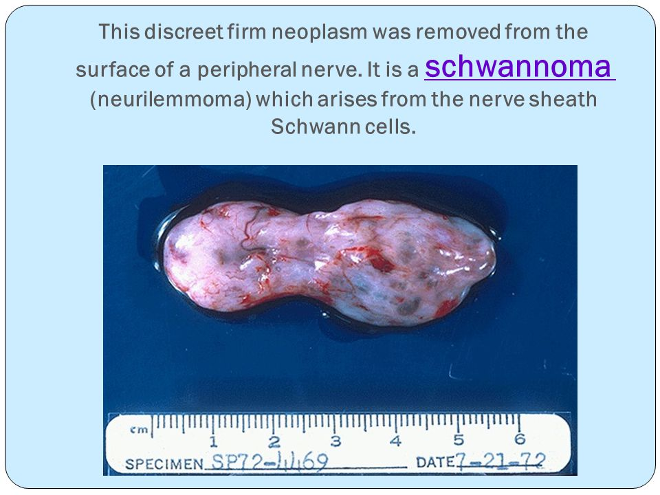 This discreet firm neoplasm was removed from the surface of a peripheral nerve.