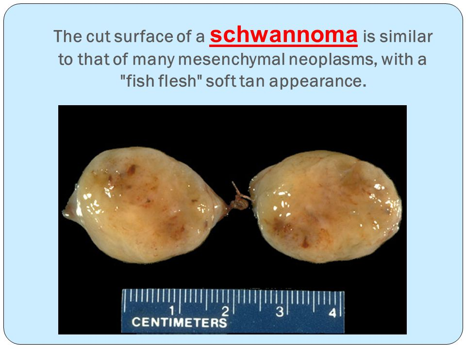 The cut surface of a schwannoma is similar to that of many mesenchymal neoplasms, with a fish flesh soft tan appearance.