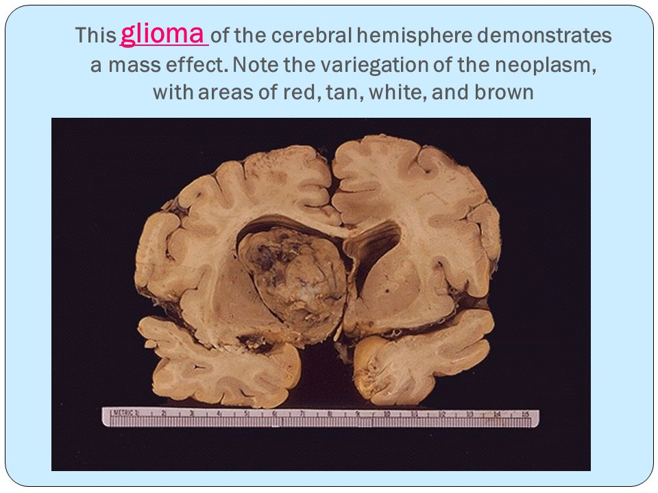 This glioma of the cerebral hemisphere demonstrates a mass effect