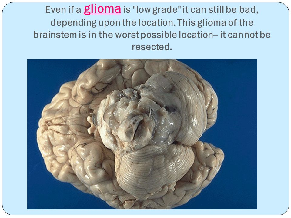 Even if a glioma is low grade it can still be bad, depending upon the location.