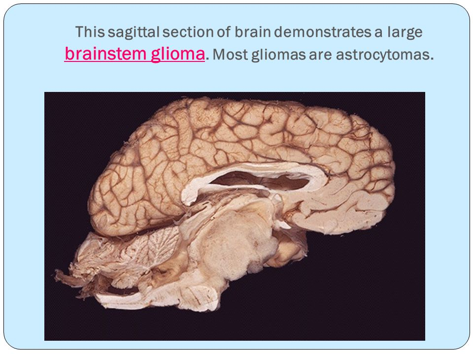 This sagittal section of brain demonstrates a large brainstem glioma