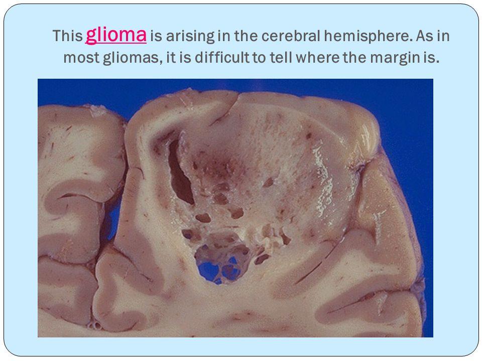 This glioma is arising in the cerebral hemisphere