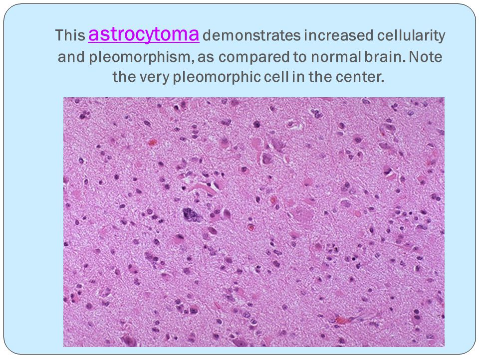 This astrocytoma demonstrates increased cellularity and pleomorphism, as compared to normal brain.