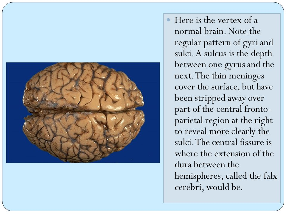 Here is the vertex of a normal brain