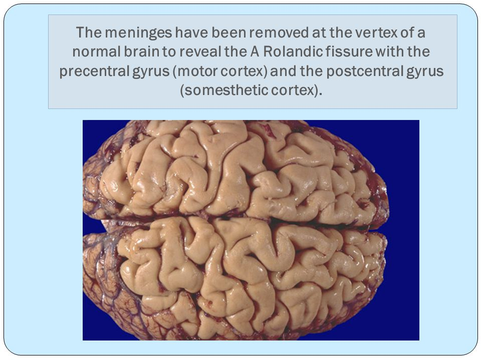 The meninges have been removed at the vertex of a normal brain to reveal the A Rolandic fissure with the precentral gyrus (motor cortex) and the postcentral gyrus (somesthetic cortex).