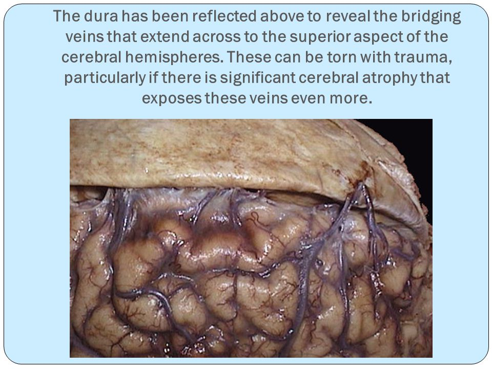 The dura has been reflected above to reveal the bridging veins that extend across to the superior aspect of the cerebral hemispheres.