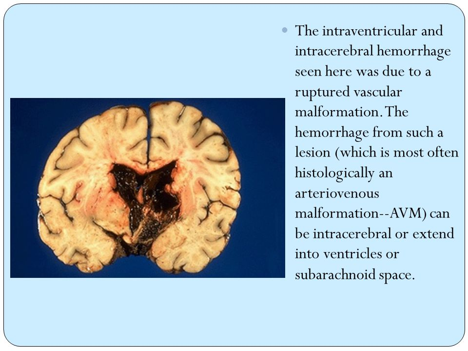 The intraventricular and intracerebral hemorrhage seen here was due to a ruptured vascular malformation.