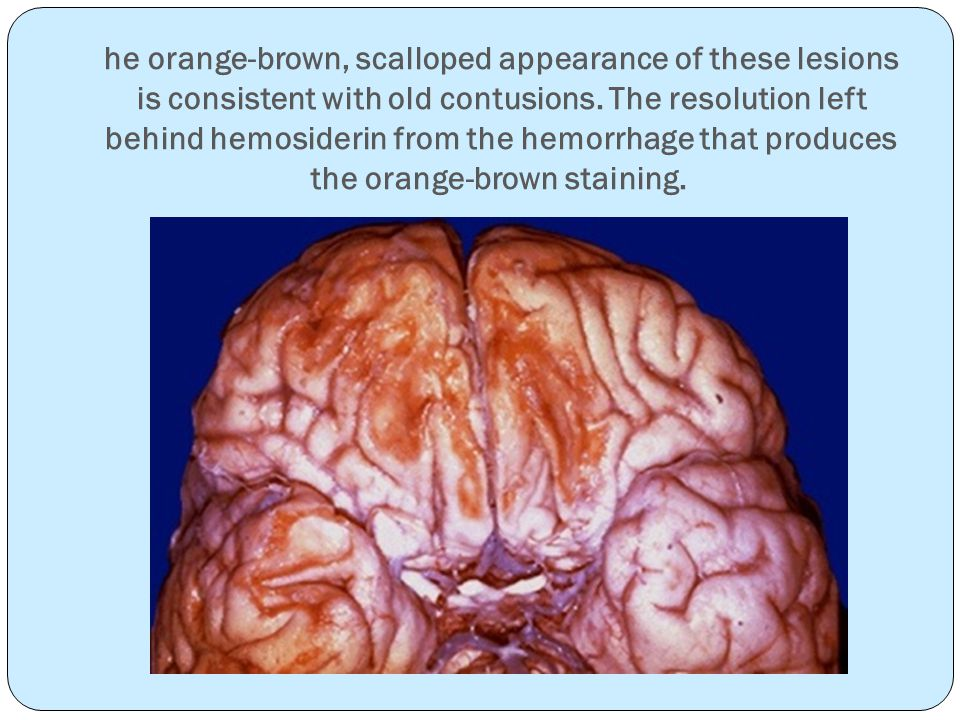he orange-brown, scalloped appearance of these lesions is consistent with old contusions.