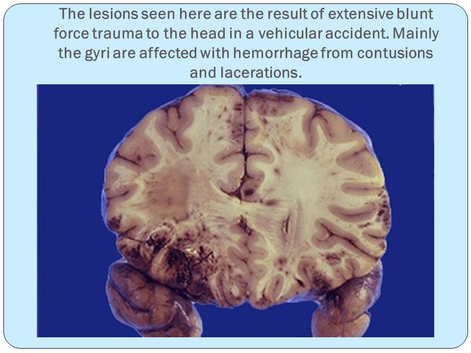 The lesions seen here are the result of extensive blunt force trauma to the head in a vehicular accident.