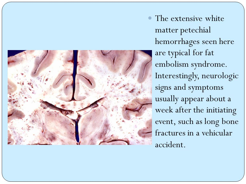 The extensive white matter petechial hemorrhages seen here are typical for fat embolism syndrome.
