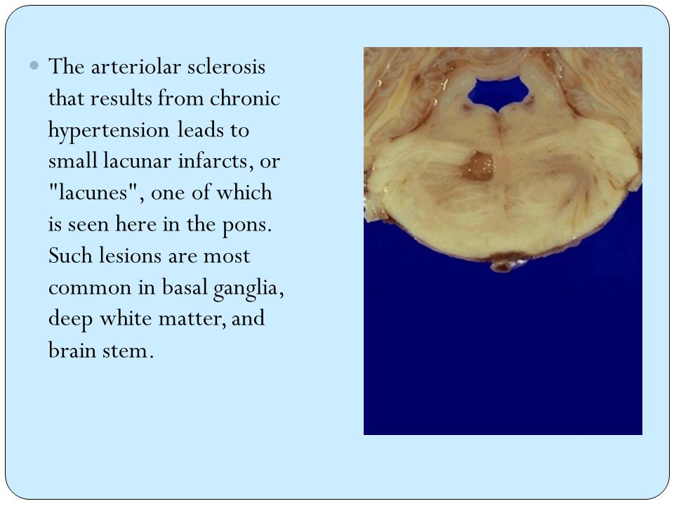 The arteriolar sclerosis that results from chronic hypertension leads to small lacunar infarcts, or lacunes , one of which is seen here in the pons.