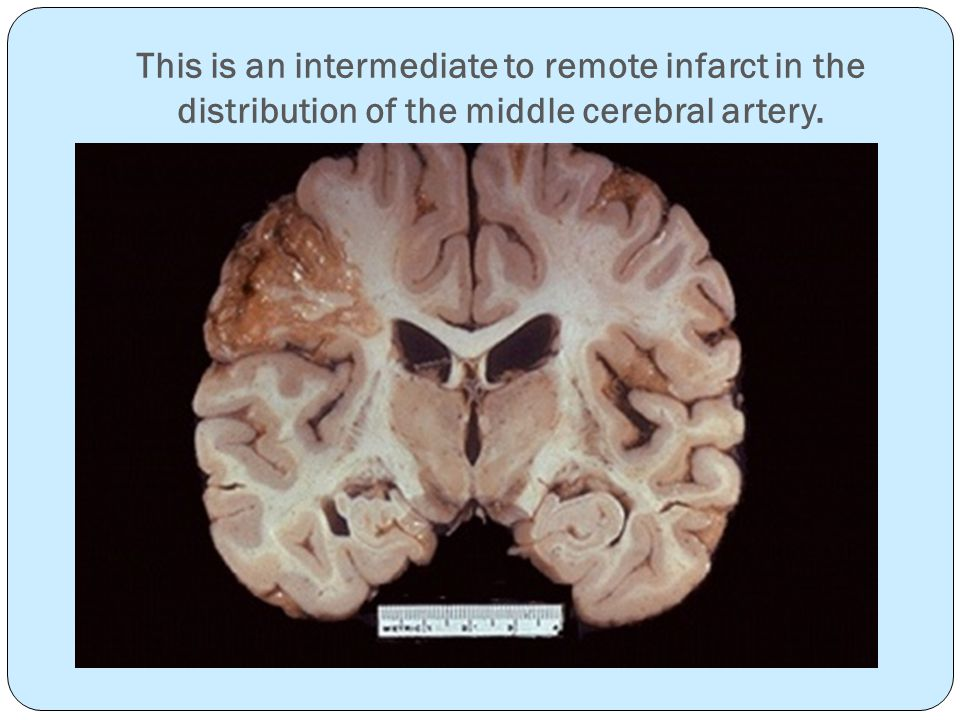 This is an intermediate to remote infarct in the distribution of the middle cerebral artery.