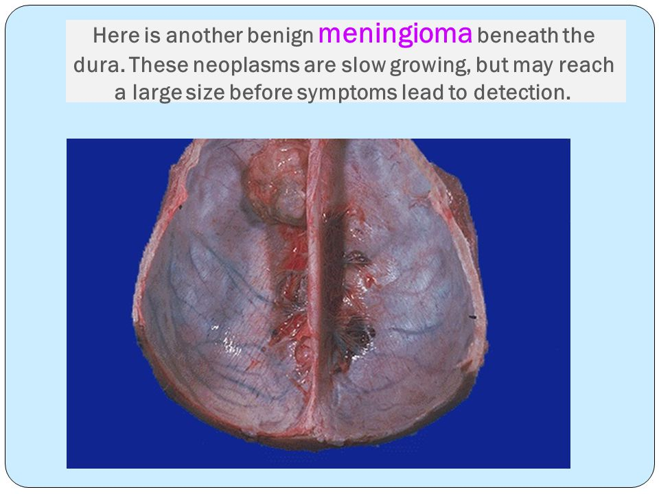 Here is another benign meningioma beneath the dura