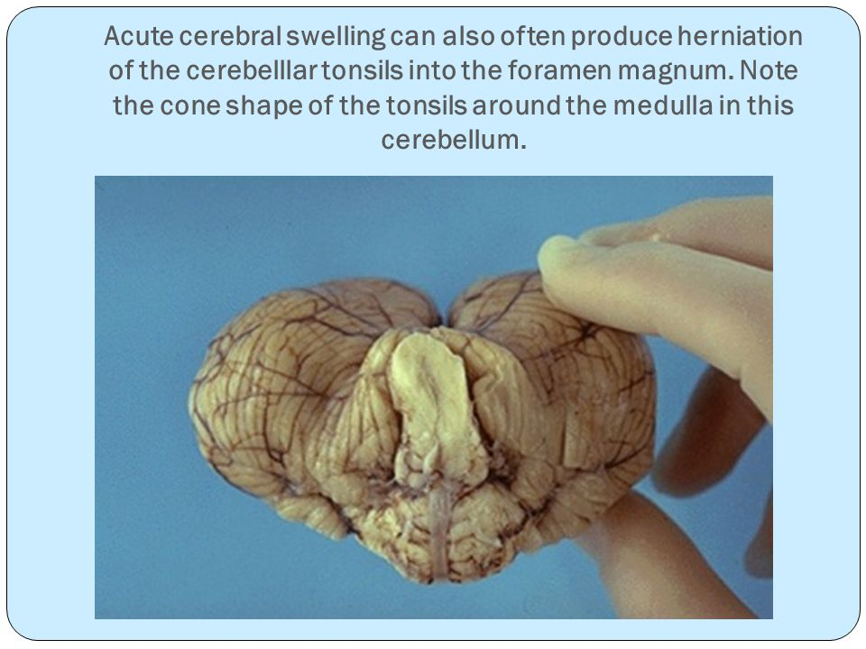 Acute cerebral swelling can also often produce herniation of the cerebelllar tonsils into the foramen magnum.