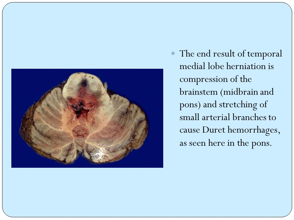 The end result of temporal medial lobe herniation is compression of the brainstem (midbrain and pons) and stretching of small arterial branches to cause Duret hemorrhages, as seen here in the pons.