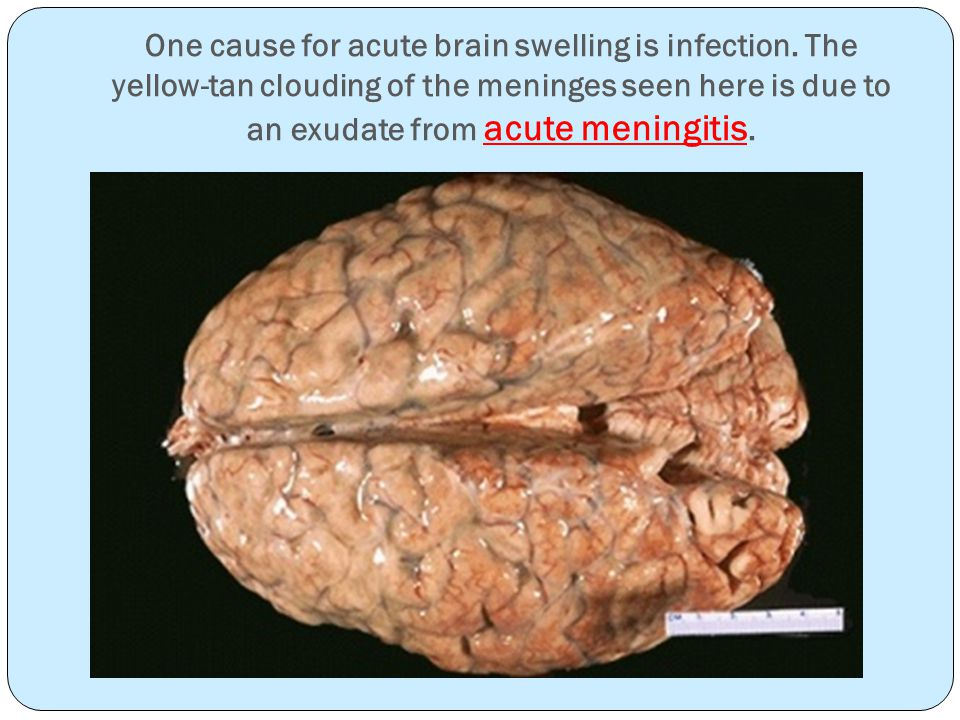 One cause for acute brain swelling is infection