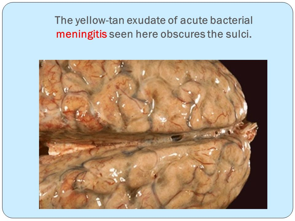 The yellow-tan exudate of acute bacterial meningitis seen here obscures the sulci.