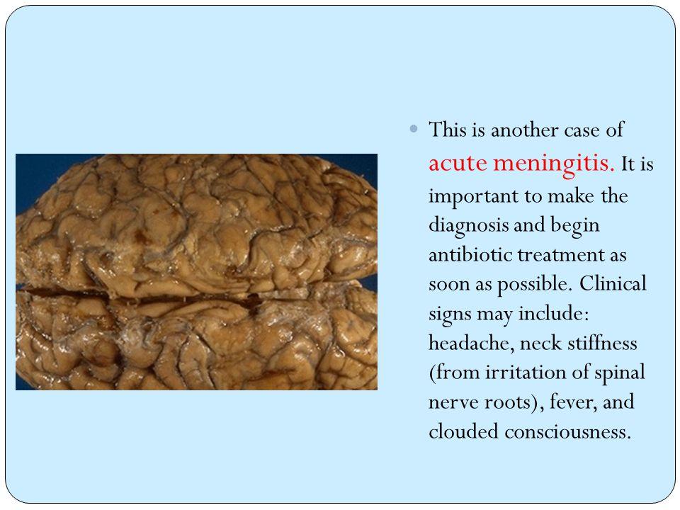 This is another case of acute meningitis