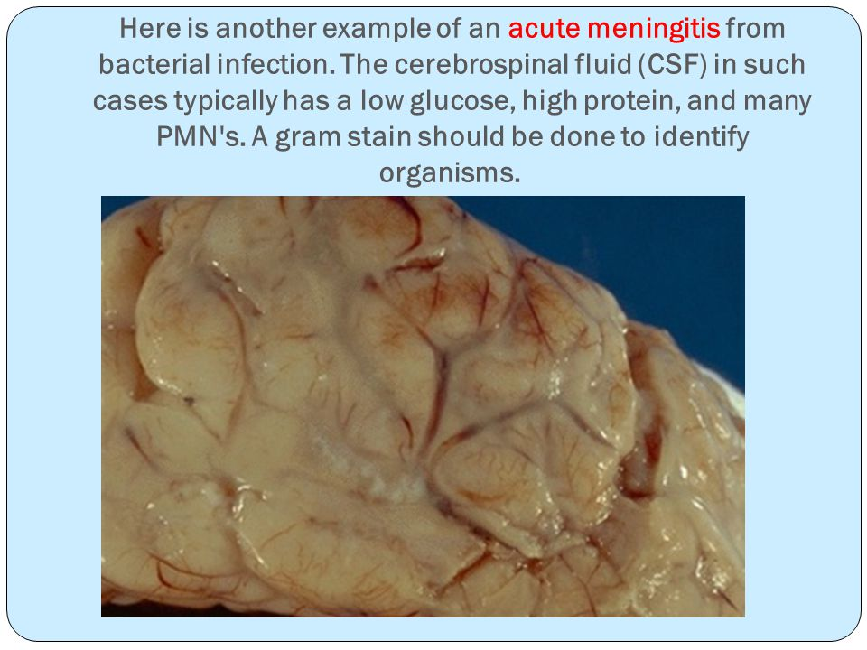 Here is another example of an acute meningitis from bacterial infection.