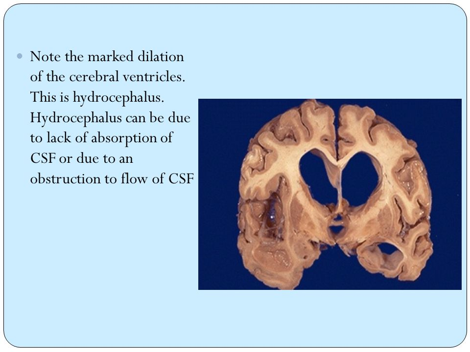 Note the marked dilation of the cerebral ventricles