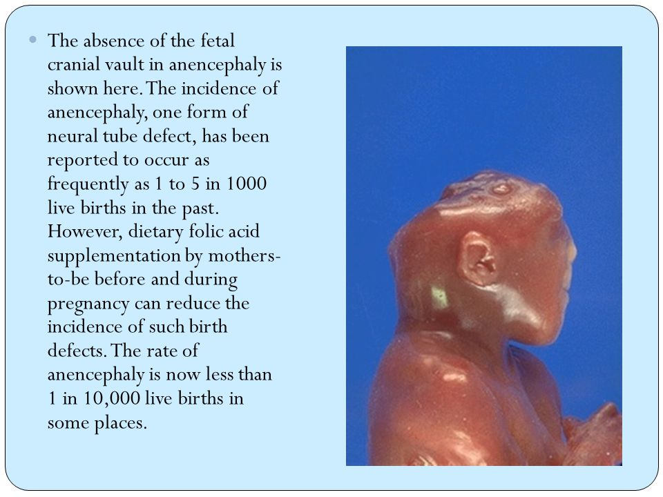 The absence of the fetal cranial vault in anencephaly is shown here