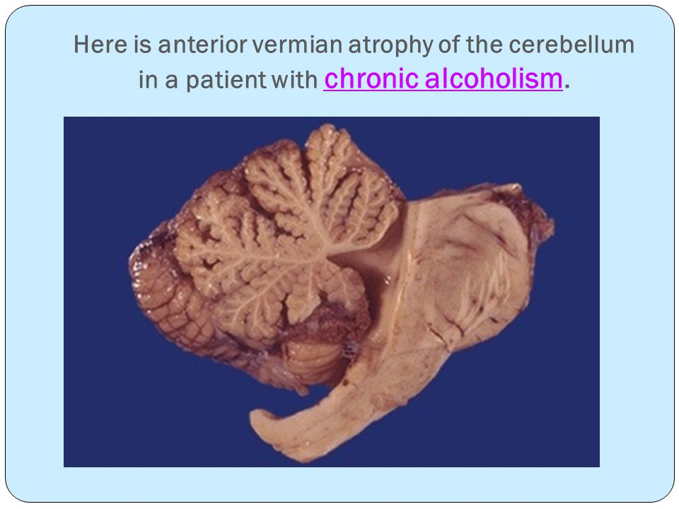 Here is anterior vermian atrophy of the cerebellum in a patient with chronic alcoholism.