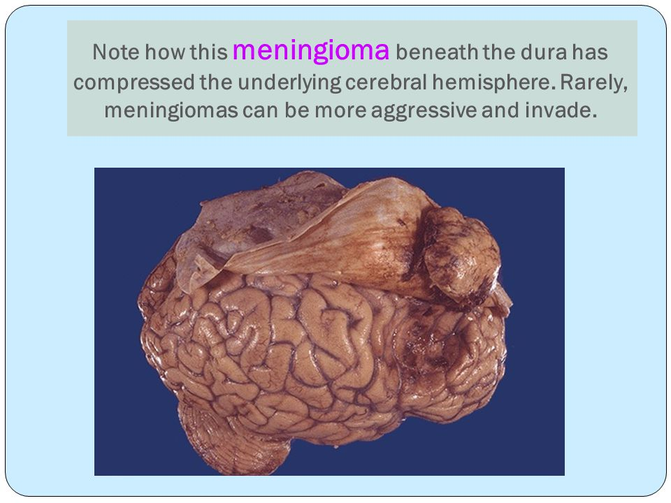 Note how this meningioma beneath the dura has compressed the underlying cerebral hemisphere.