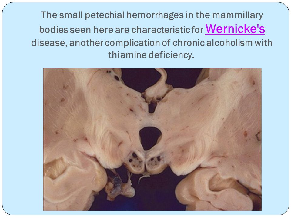 The small petechial hemorrhages in the mammillary bodies seen here are characteristic for Wernicke s disease, another complication of chronic alcoholism with thiamine deficiency.