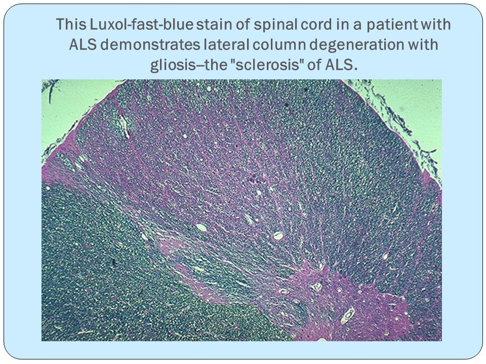 This Luxol-fast-blue stain of spinal cord in a patient with ALS demonstrates lateral column degeneration with gliosis--the sclerosis of ALS.