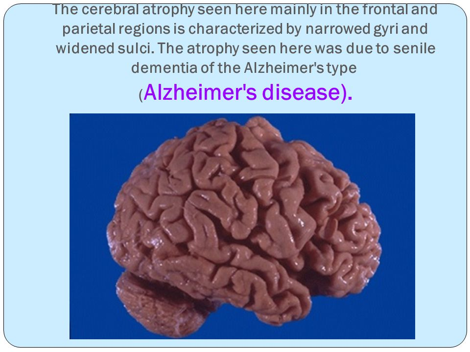 The cerebral atrophy seen here mainly in the frontal and parietal regions is characterized by narrowed gyri and widened sulci.