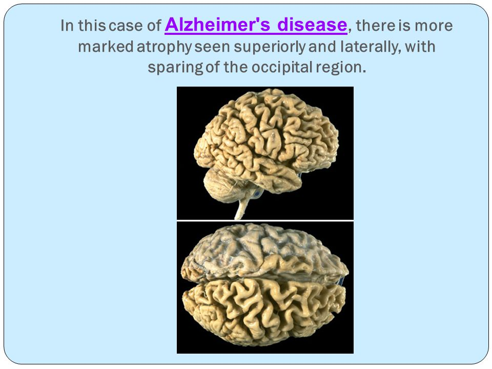 In this case of Alzheimer s disease, there is more marked atrophy seen superiorly and laterally, with sparing of the occipital region.