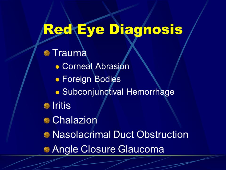 Red Eye Diagnosis Trauma Iritis Chalazion