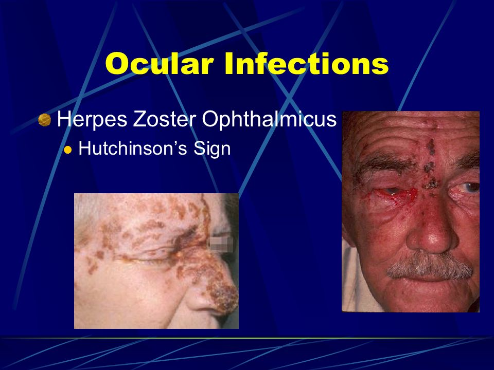 Ocular Infections Herpes Zoster Ophthalmicus Hutchinson's Sign