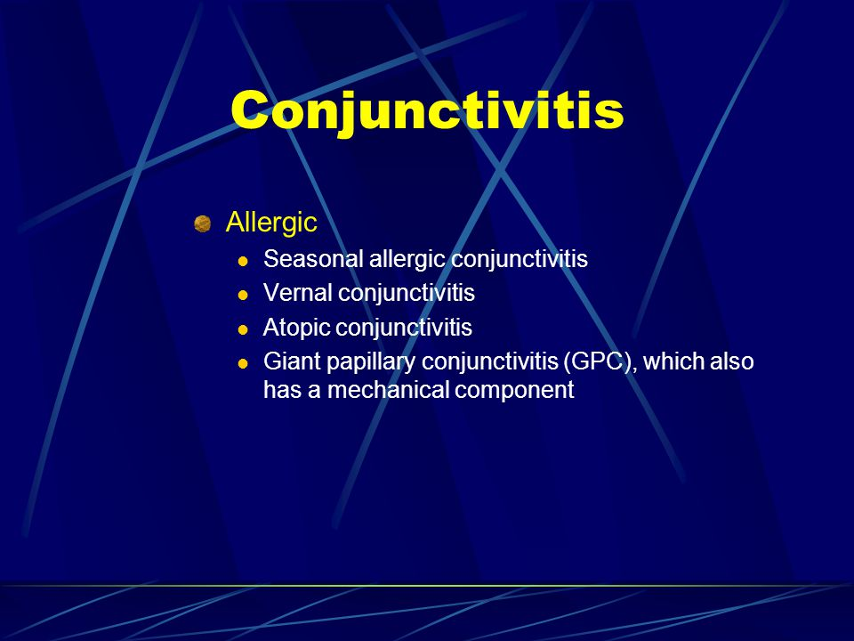 Conjunctivitis Allergic Seasonal allergic conjunctivitis