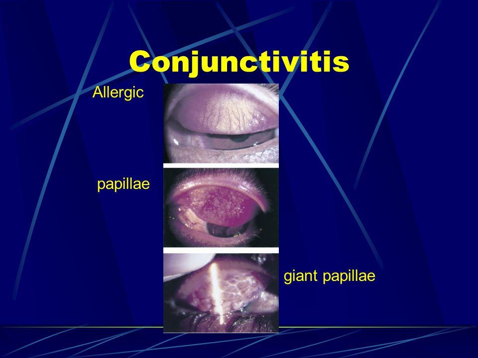 Conjunctivitis Allergic papillae giant papillae
