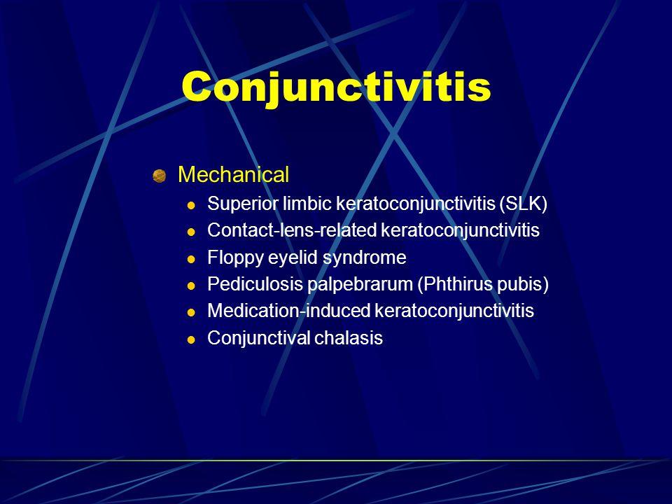 Conjunctivitis Mechanical Superior limbic keratoconjunctivitis (SLK)