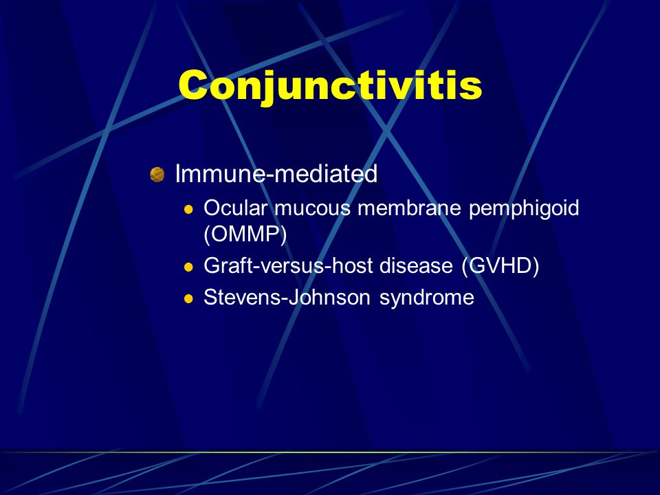 Conjunctivitis Immune-mediated