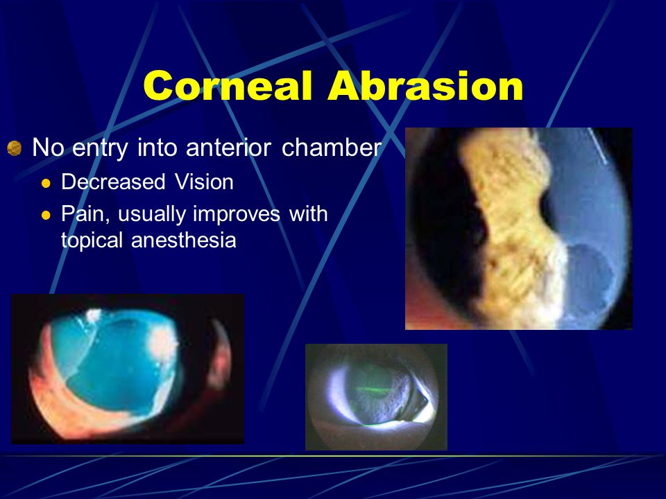 Corneal Abrasion No entry into anterior chamber Decreased Vision