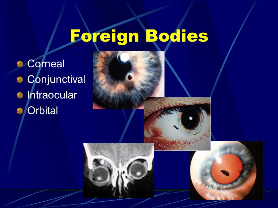 Foreign Bodies Corneal Conjunctival Intraocular Orbital