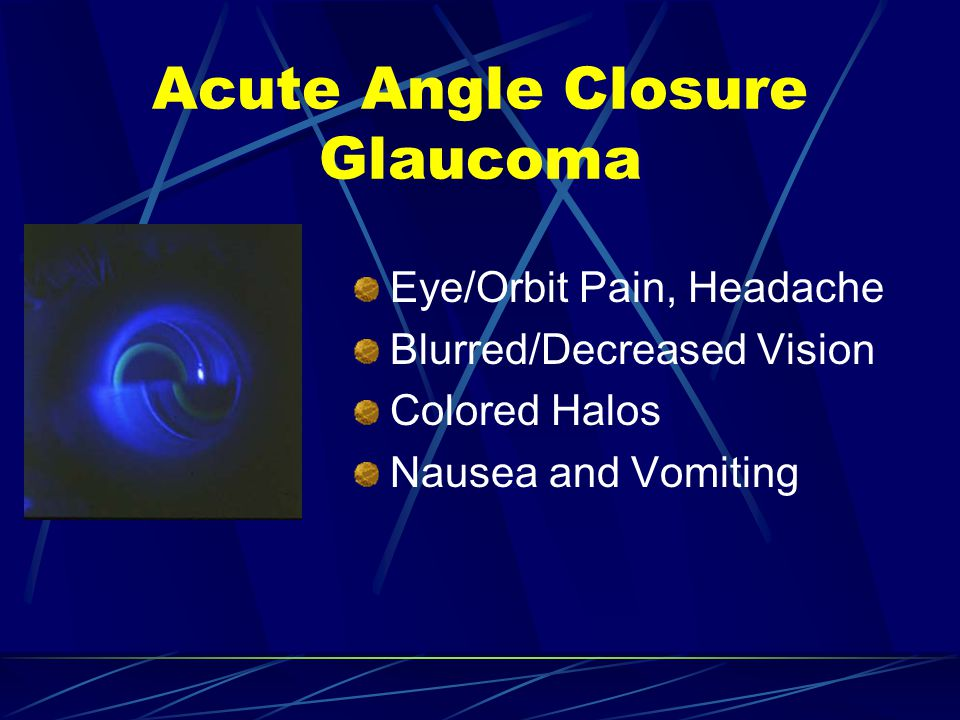 Acute Angle Closure Glaucoma