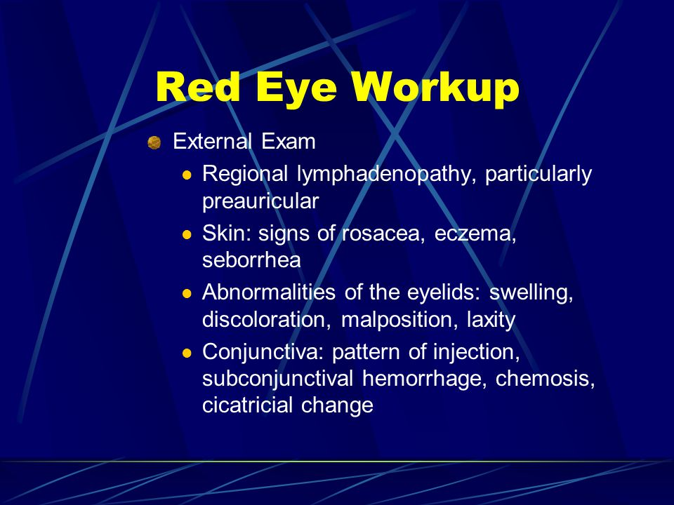 Red Eye Workup External Exam