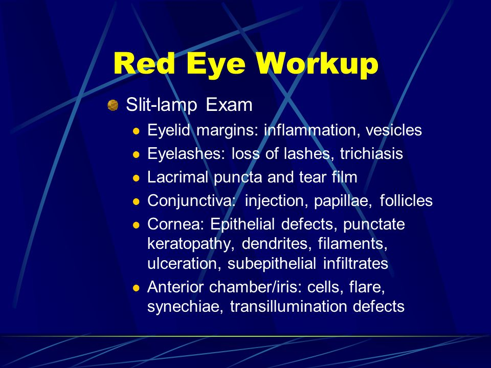 Red Eye Workup Slit-lamp Exam Eyelid margins: inflammation, vesicles