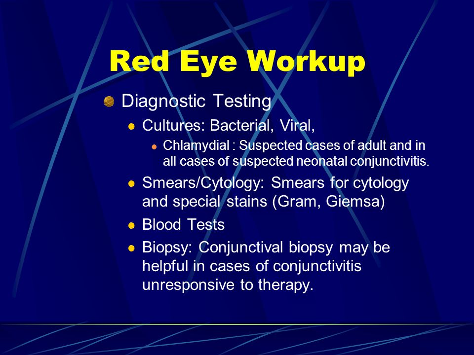 Red Eye Workup Diagnostic Testing Cultures: Bacterial, Viral,