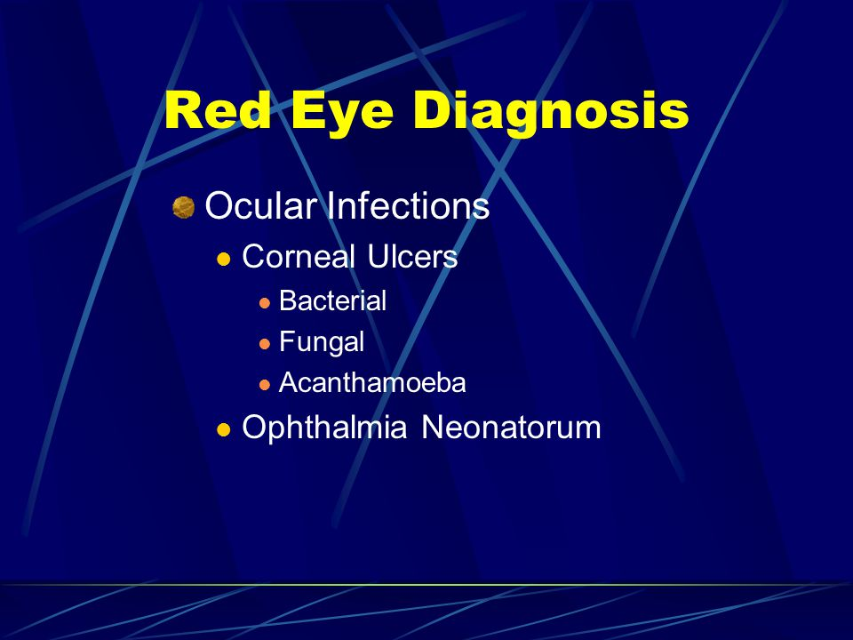 Red Eye Diagnosis Ocular Infections Corneal Ulcers