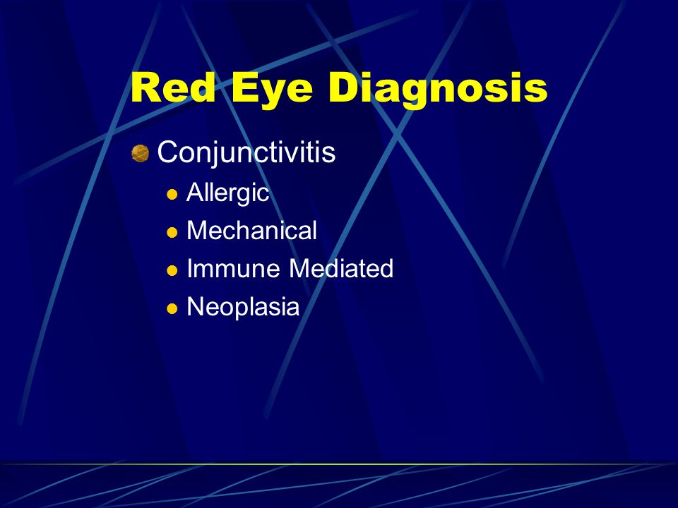 Red Eye Diagnosis Conjunctivitis Allergic Mechanical Immune Mediated