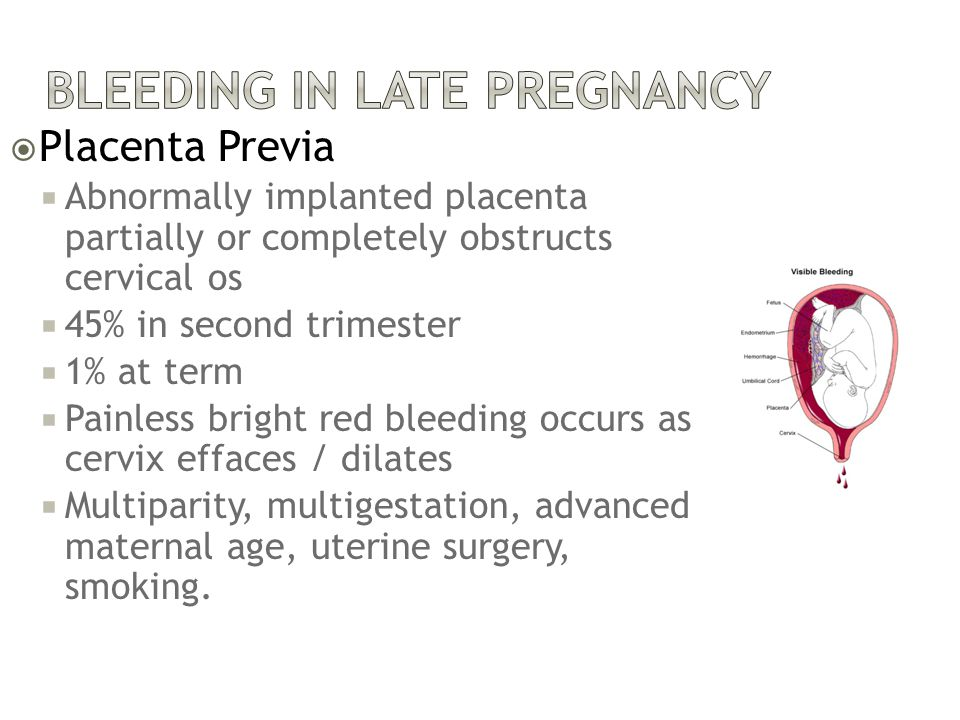 Bleeding in Late Pregnancy