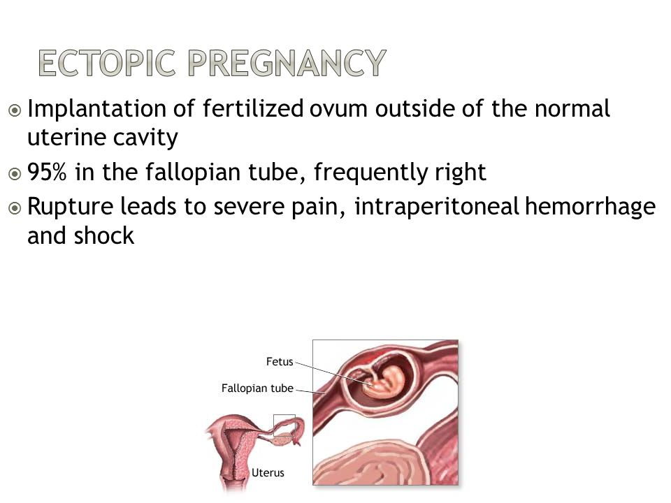 Ectopic Pregnancy Implantation of fertilized ovum outside of the normal uterine cavity. 95% in the fallopian tube, frequently right.
