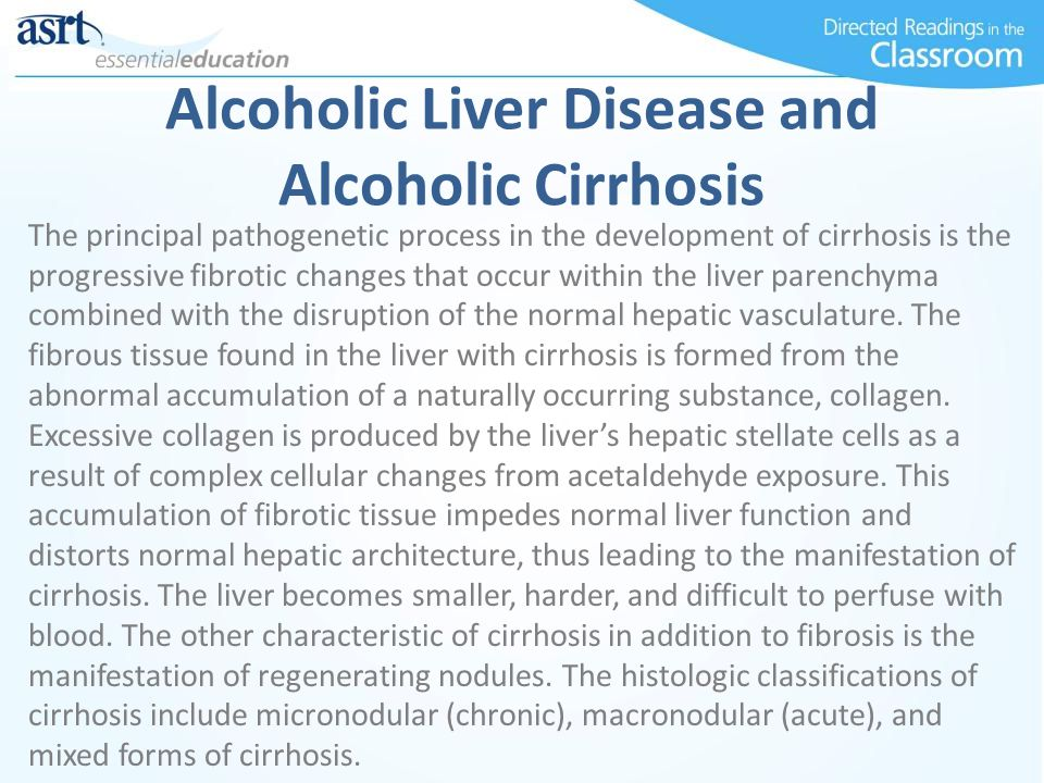 Alcoholic Liver Disease and Alcoholic Cirrhosis