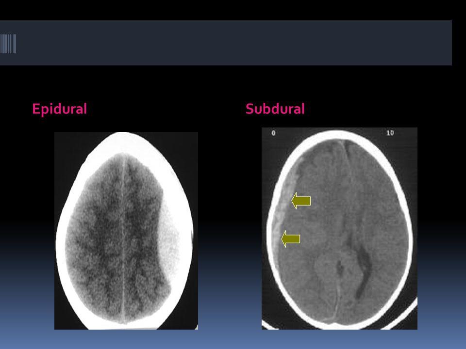 Epidural Subdural