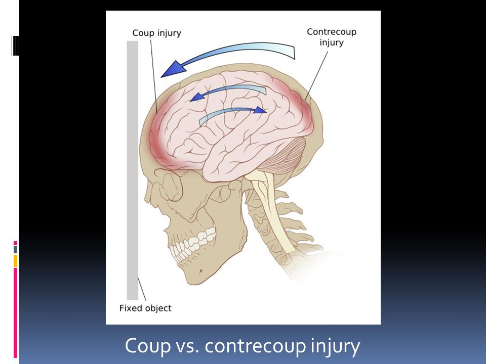 Coup vs. contrecoup injury